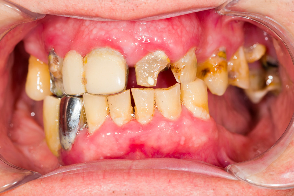 bad tooth blog, bad teeth replacement